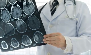 A doctor examines CT scan images