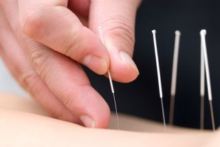 what is acupuncture does