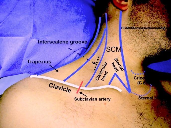 muscle diagram anterior hand lance camper wiring interscalene block | nevada pain - las vegas, henderson