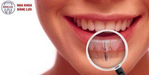 Kết quả hình ảnh cho implant site:nhakhoadangluu.com.vn