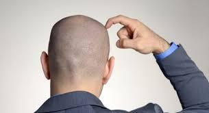 foto bij artikel Is het einde van kaalhoofdigheid in zicht?