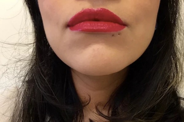 How to deal with the labret scars?