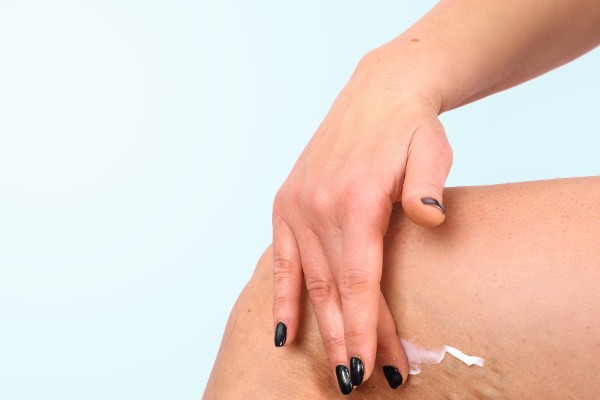 What is a skin numbing cream?
