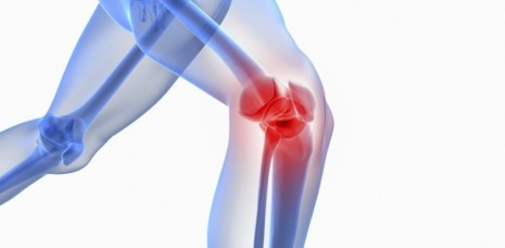 Image result for knee problems