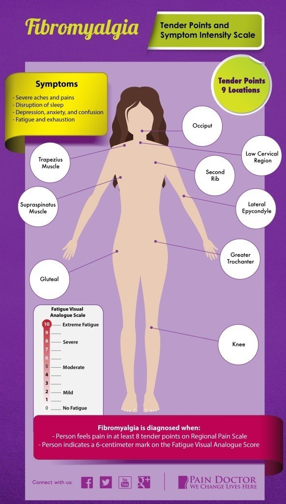 27 Of The Most Common Fibromyalgia Symptoms | PainDoctor.com