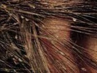 How Can I Be Sure Lice Are Gone? - Potomac, MD Patch