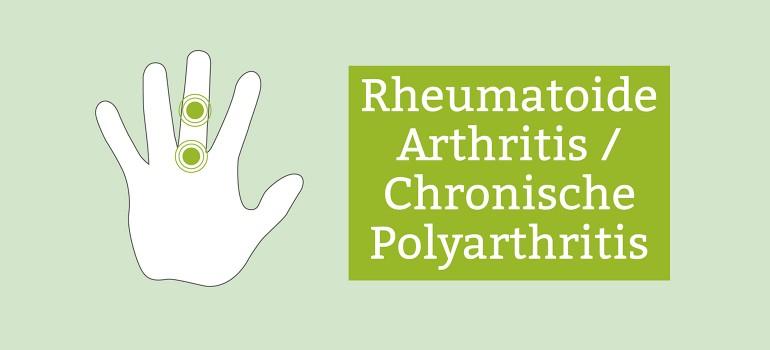 rheumatoide arthritis polyarthritis