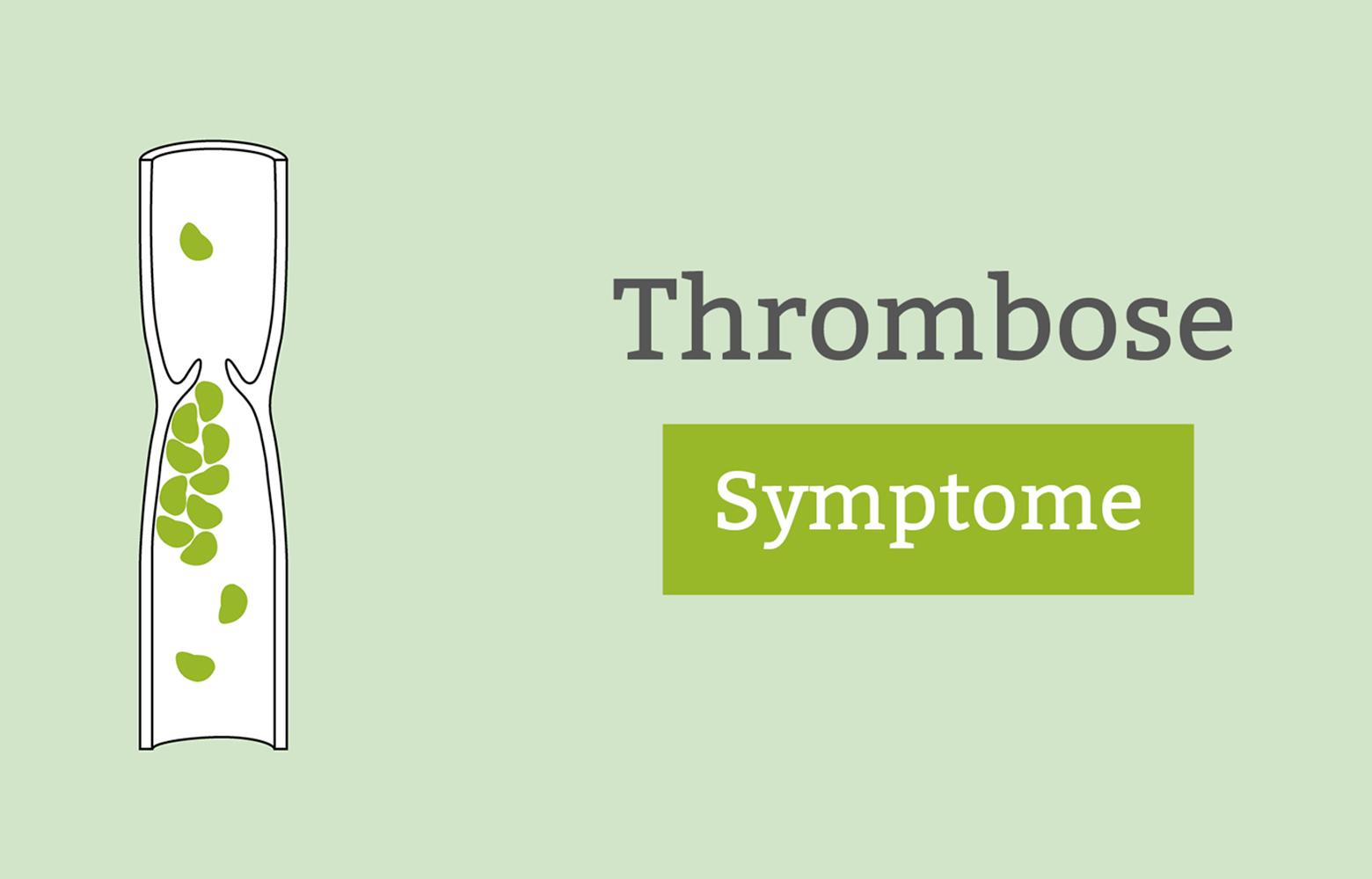 thrombose anzeichen symptome