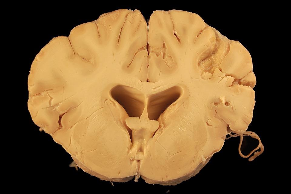 Photo Gratuite Cerveau LAnatomie Chien Image