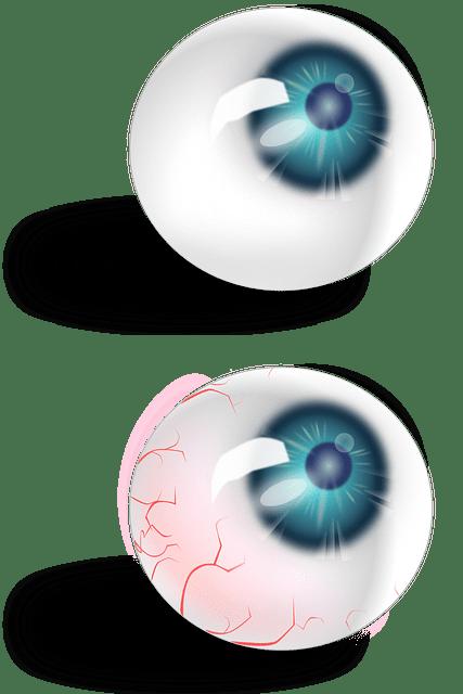 Vector Gratis Globo Ocular Anatom 237 A Rojo Venas