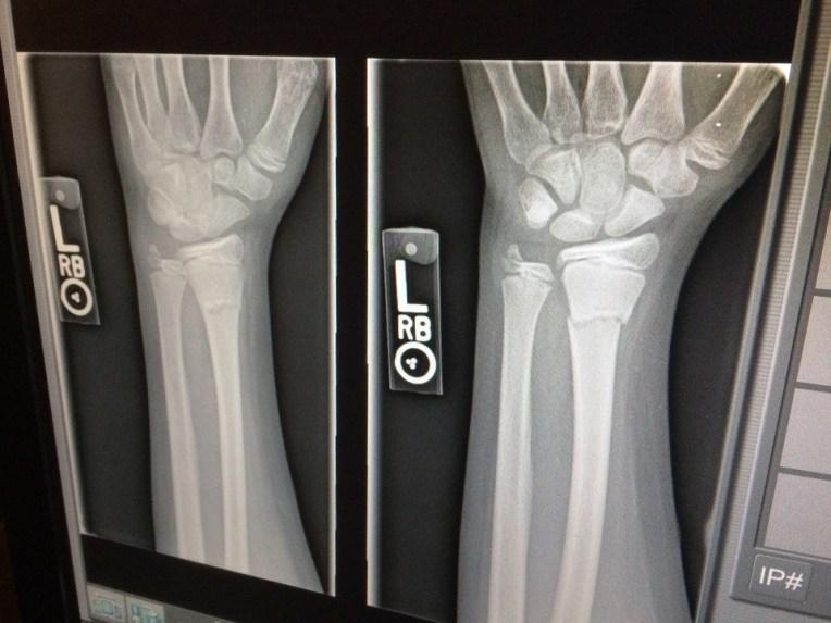 X-Ray, Medical, Broken, Arm, Doctor, X Ray, Medicine