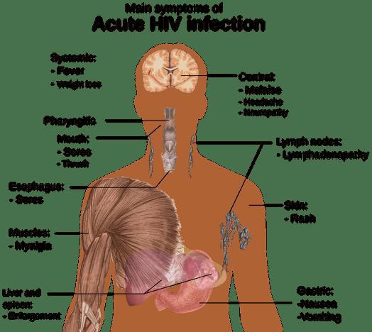 Hiv, Aids, Png 1-2, Studio Del Corpo Umano, Panoramica