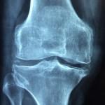 Febbre reumatica acuta (FRA)