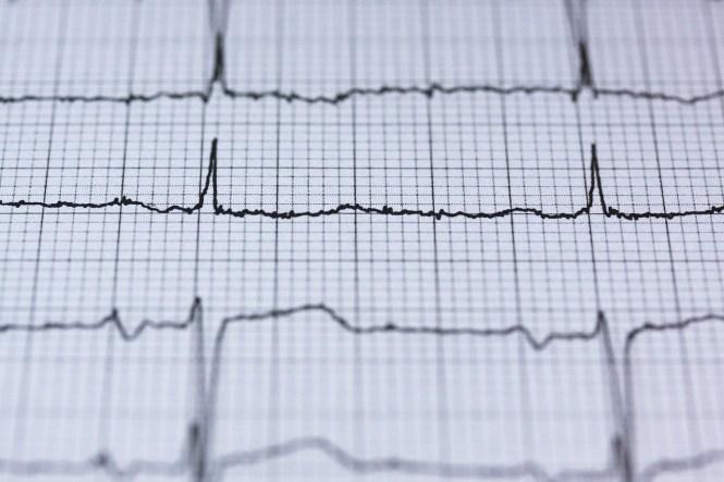 Elektrokardiografi atau EKG sebagai prosedur Medical Check Up
