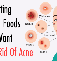 get rid of acne [ 1600 x 900 Pixel ]