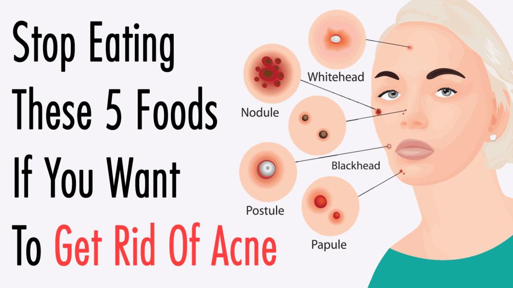 medium resolution of get rid of acne