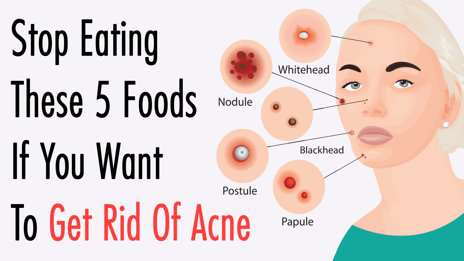 hight resolution of get rid of acne