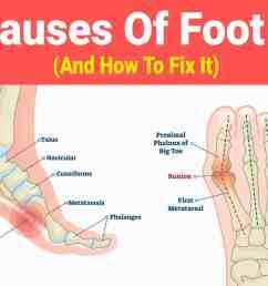 foot pain [ 1600 x 900 Pixel ]