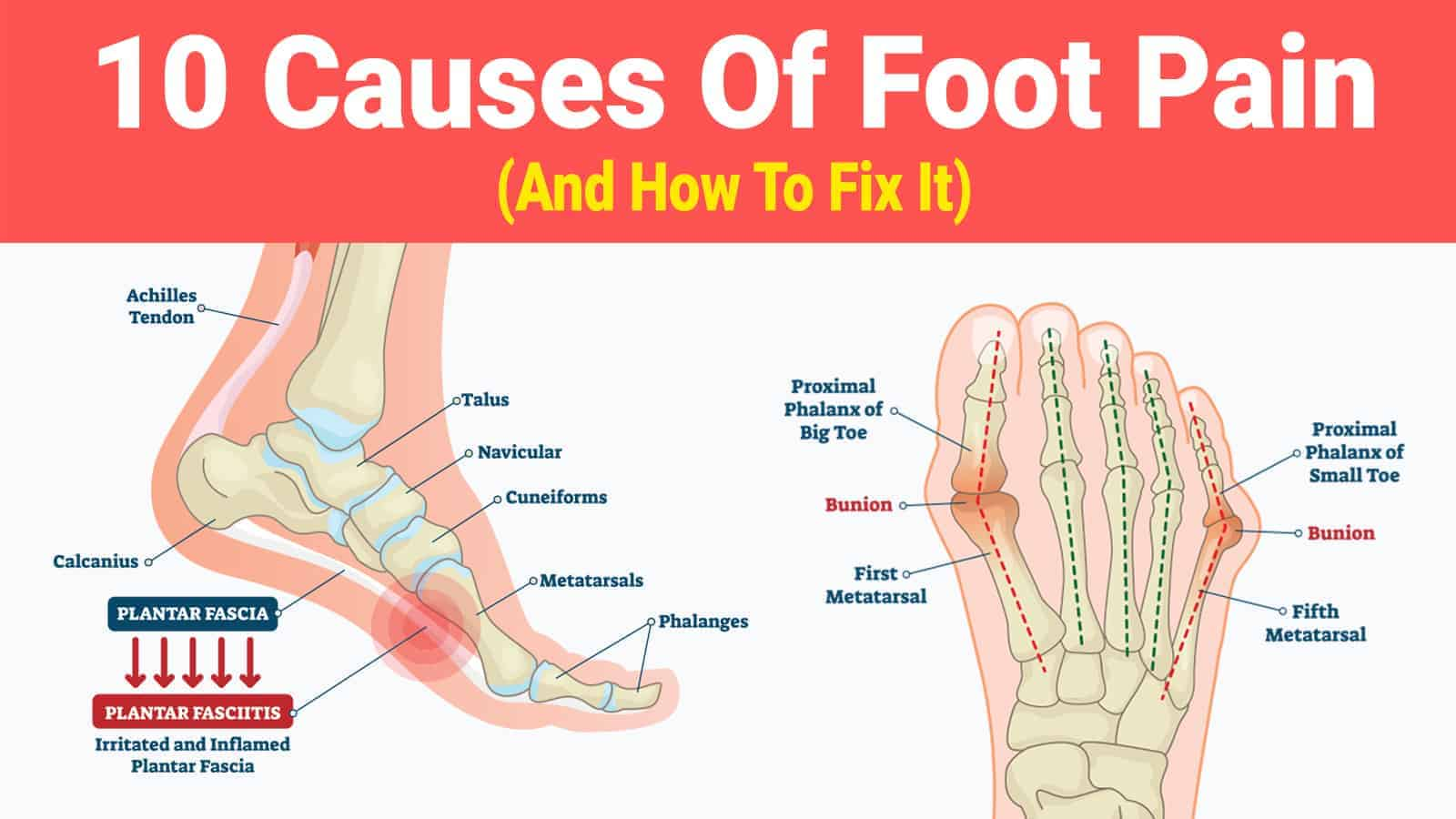 hight resolution of foot pain