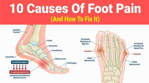 small resolution of foot pain