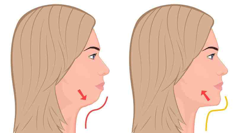 exercices contre le double menton