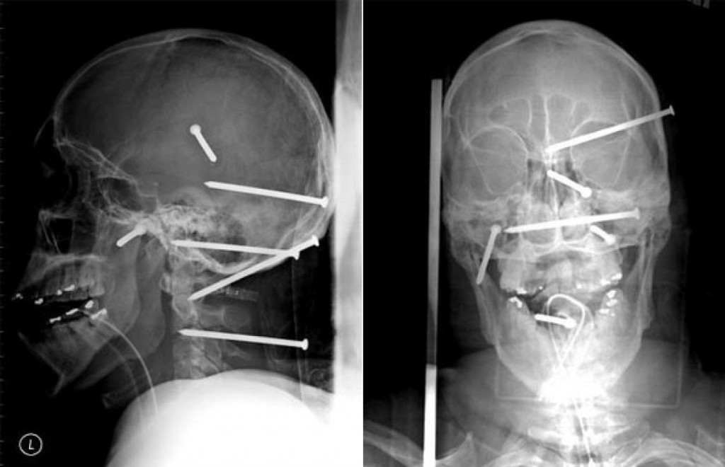 15 Mind Boggling X-Ray Photos That Will Make You Thankful ...