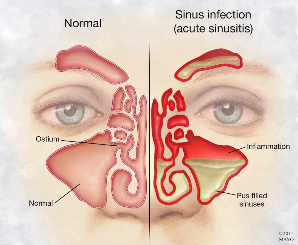 medium resolution of  illustration of person s face with sinus infection and inflammation