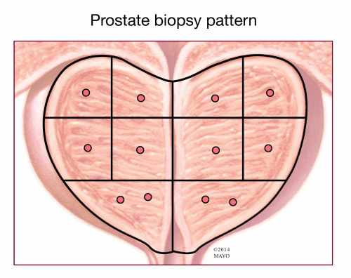 small resolution of  prostate biopsy pattern illustration