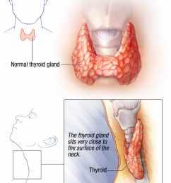 illustration of normal thyroid gland [ 1125 x 1515 Pixel ]