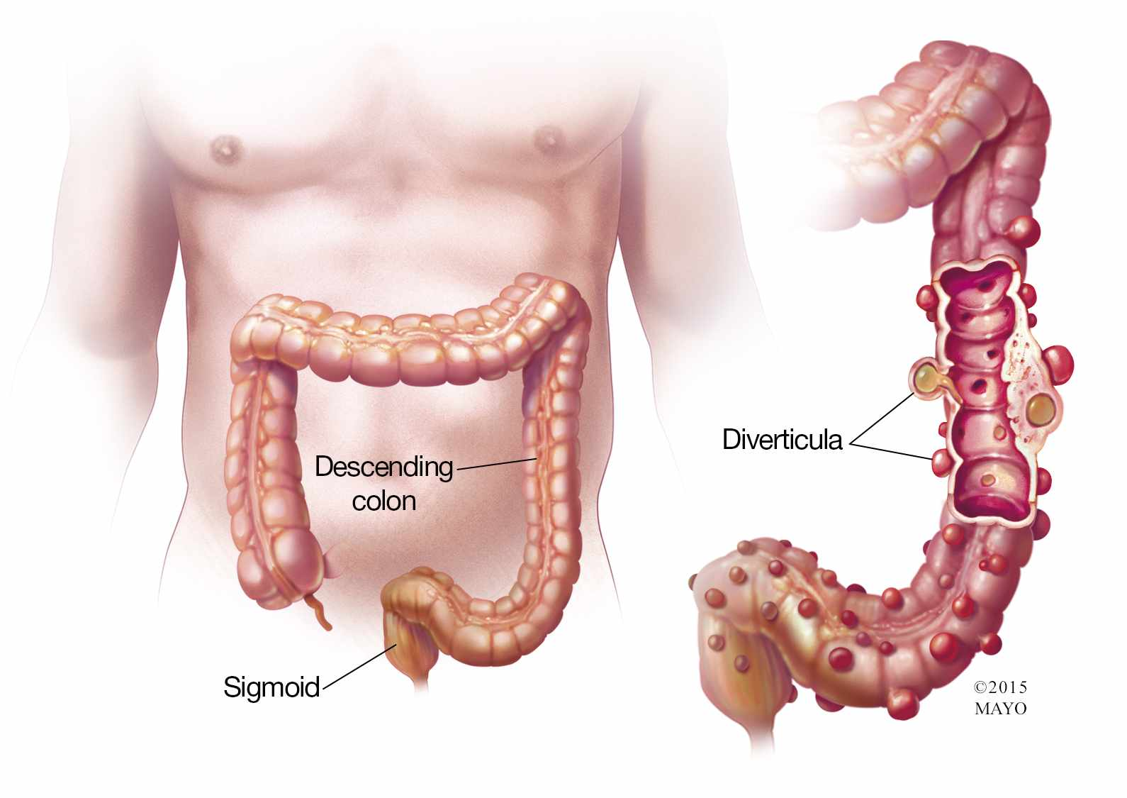hight resolution of  illustration of colon with diverticula diverticulitis