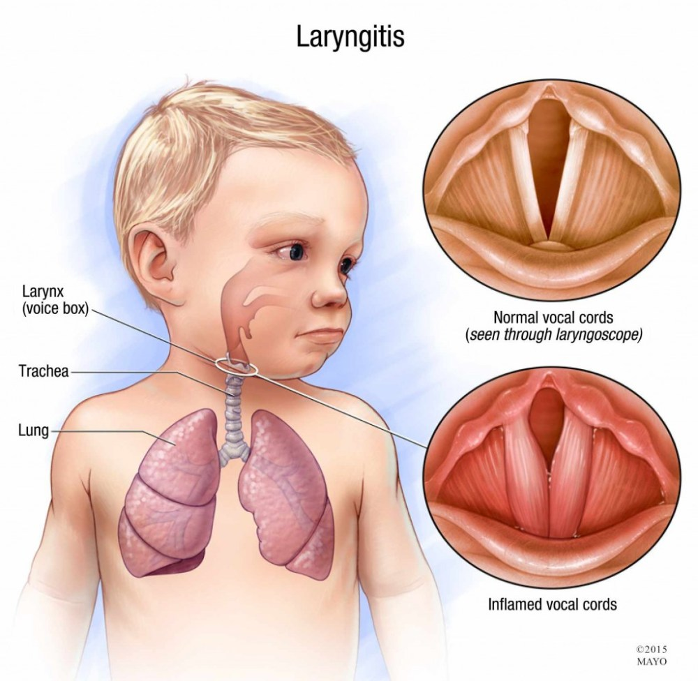 medium resolution of illustration of child with laryngitis