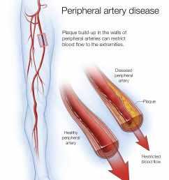 illustration of peripheral artery disease [ 1981 x 2811 Pixel ]