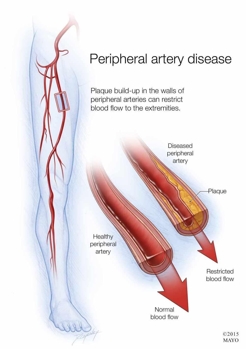 medium resolution of illustration of peripheral artery disease