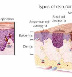 medical illustration of the types of skin cancer melanoma basal cell carcinoma squamous [ 1540 x 814 Pixel ]