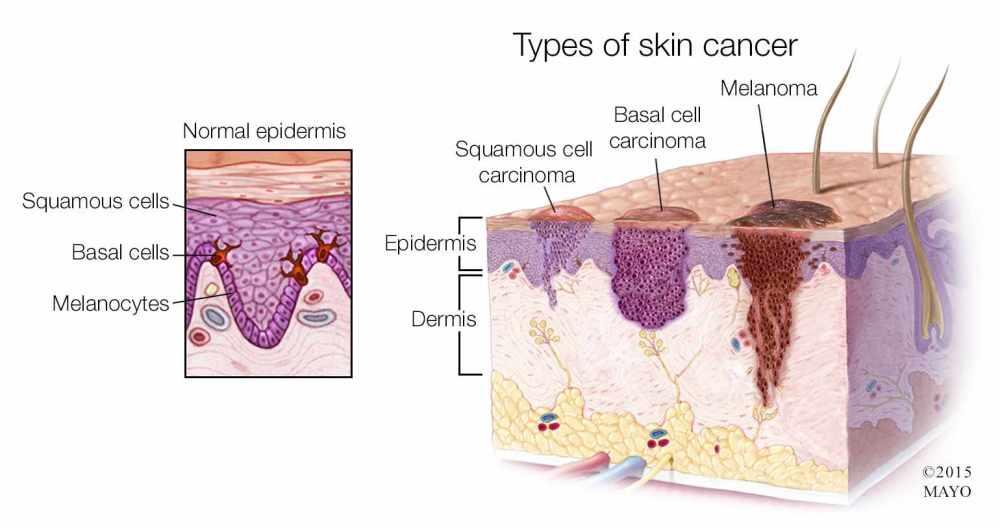 medium resolution of  medical illustration of the types of skin cancer melanoma basal cell carcinoma squamous