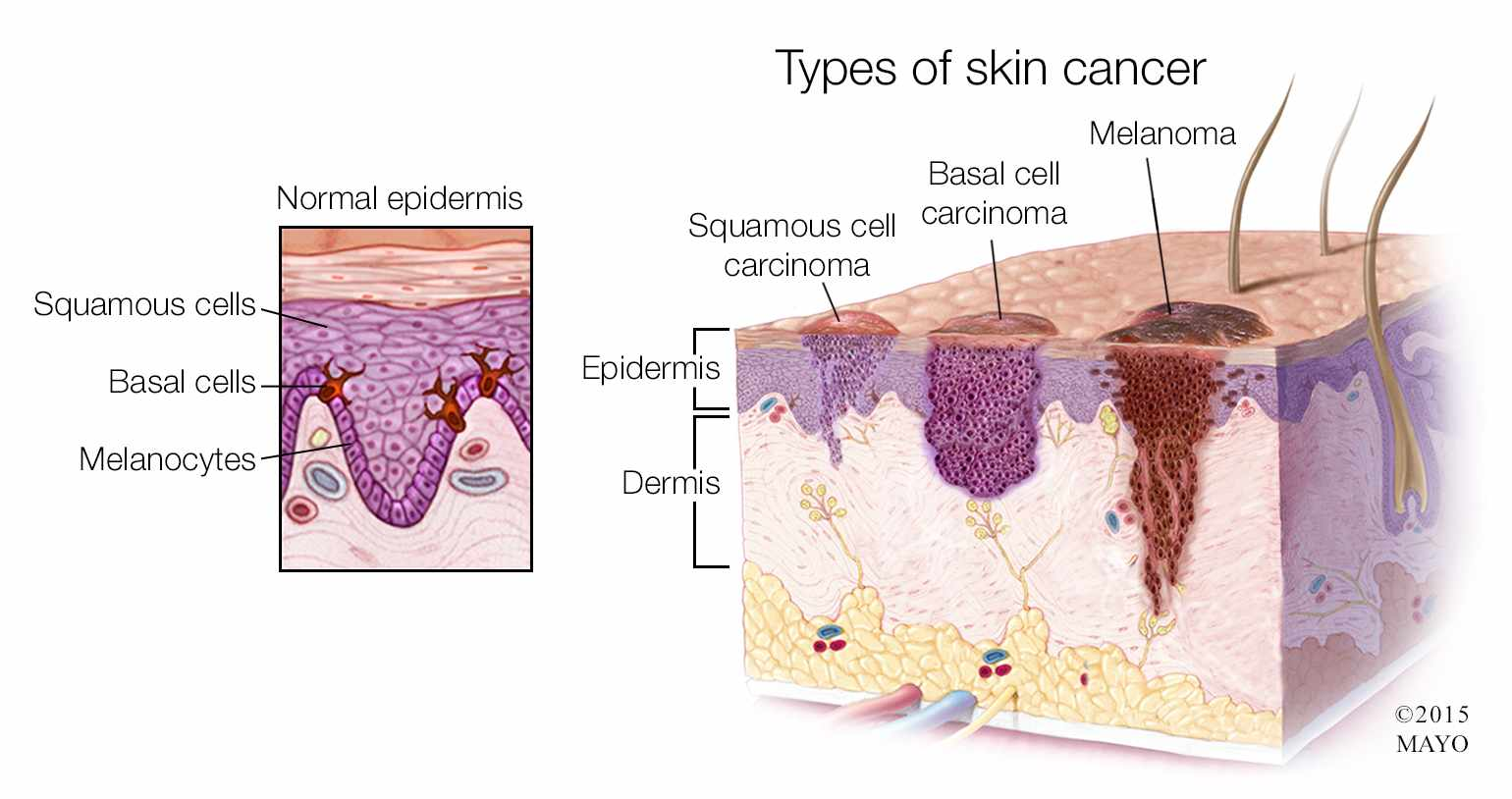 hight resolution of  medical illustration of the types of skin cancer melanoma basal cell carcinoma squamous