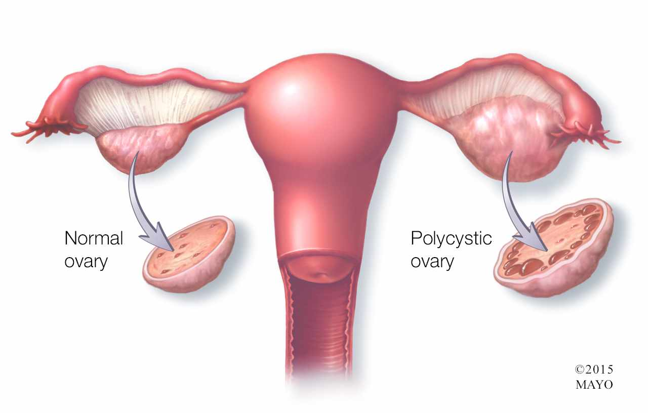 hight resolution of medical illustration of normal ovary and polycystic ovary