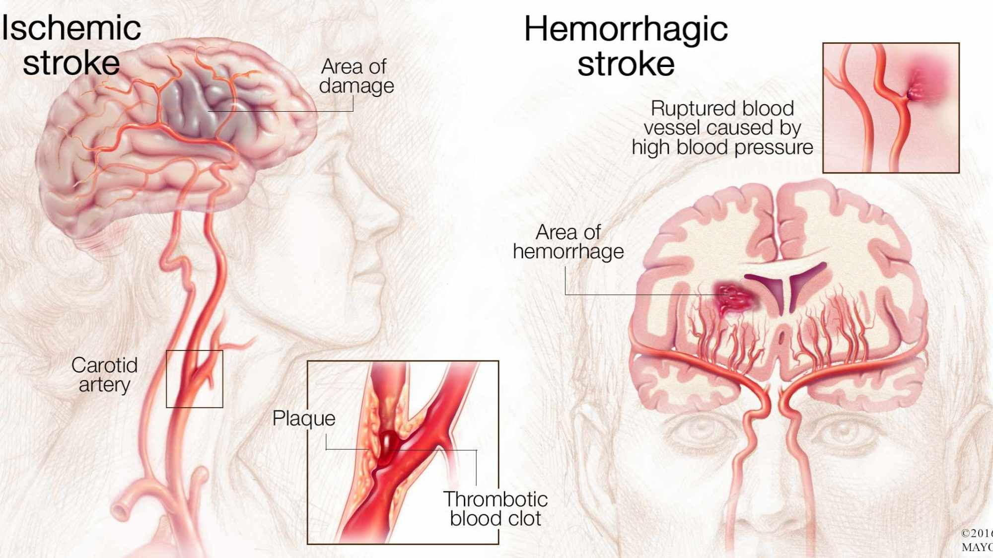 hight resolution of medical illustration of brain with ischemic stroke and hemorrhagic stroke