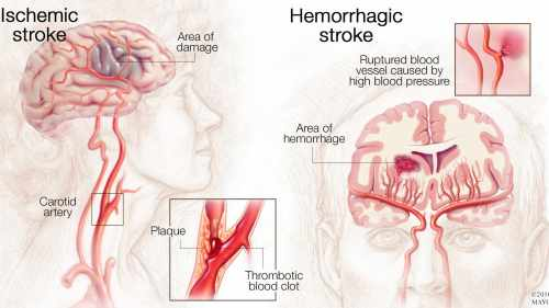 small resolution of medical illustration of brain with ischemic stroke and hemorrhagic stroke