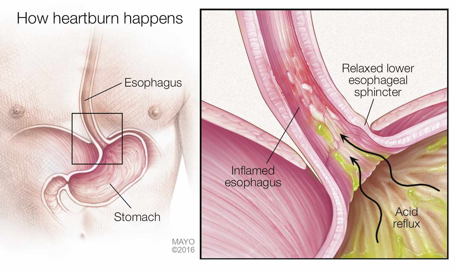 hight resolution of a medical illustration of how heartburn acid reflux happens