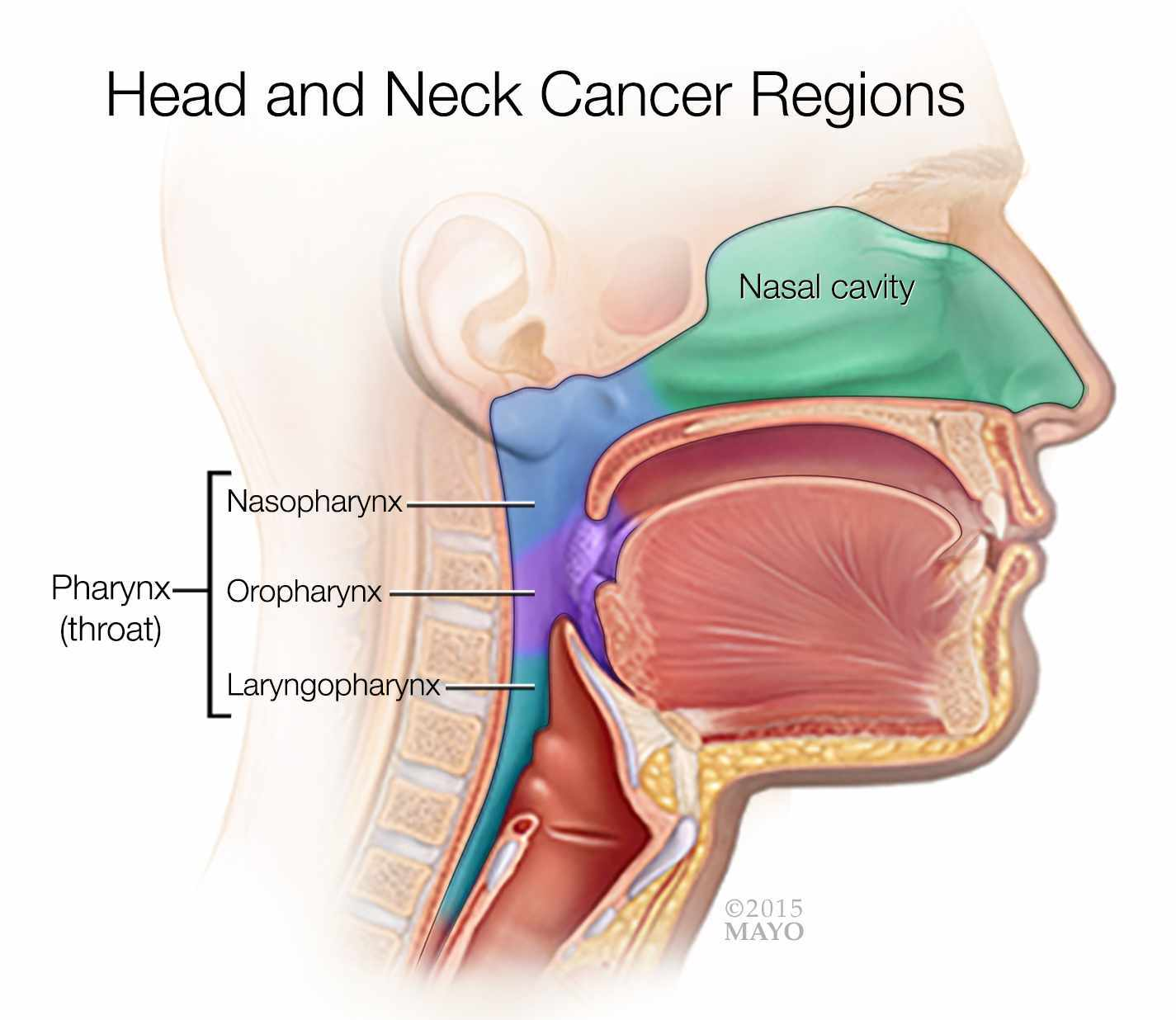 hight resolution of a medical illustrations of the head and neck cancer regions