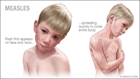 Mayo Clinic Q and A: Treating measles — managing symptoms until ...