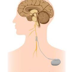 Vagus Nerve Diagram Badlands 12000 Lb Winch Wiring Stimulation Holds Promise For Treating Addiction Alila Medical Media Shutterstock