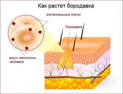conspirația apei din varicoză
