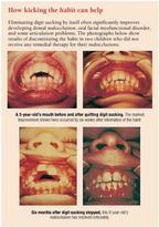 Sucking Teeth Sound : sucking, teeth, sound, Can't, Afford, Ignore, Prolonged, Digit, Sucking