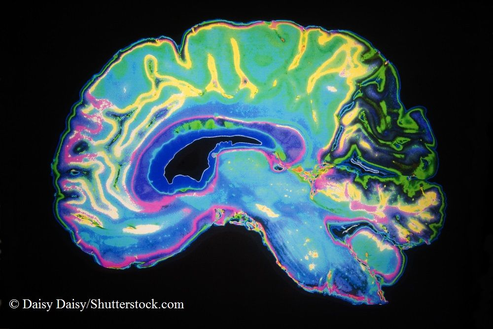 Brain Imaging Identifies Iron Deposits Linked to Cognitive ...