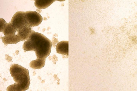 Brain cancer stem cells (left) are killed by Zika virus infection (image at right shows cells after Zika treatment). Image credit: Zhe Zhu.