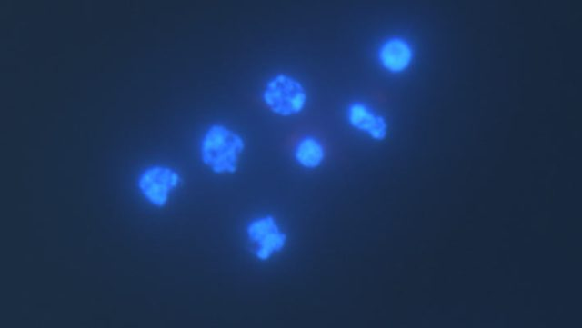 Henneguya salminicola, also known as Henneguya zschokkei, has large nuclei but surprisingly no mitochondrial nucleosomes. Image credit: Yahalomi et al, doi: 10.1073/pnas.1909907117.