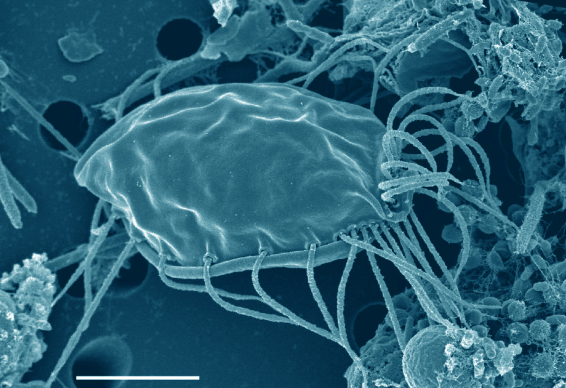 Newly Discovered Protists Add New Branch To Tree Of