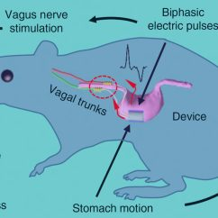 Vagus Nerve Diagram Wiring 2 Way Switch Implantable Stimulation Device Aids Weight Loss Operation Principle Of The Vns System Schematically Showing Pathway For